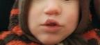 Optik Mund- und Nasenverschluss (Lippenplastik)